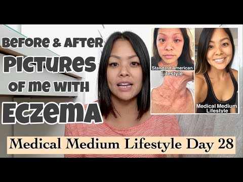 Day 28…BEFORE & AFTER PICS of me with ECZEMA