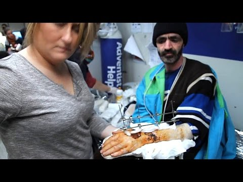 Refugee Shot in Hand by Taliban - Lesbos Greece