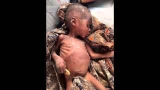 Спасение брошенного ребенка в Нигерии | КИТ