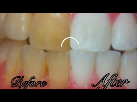 white teeth at home in just 2 min /Diy plaque remove naturally 100% miracalus result
