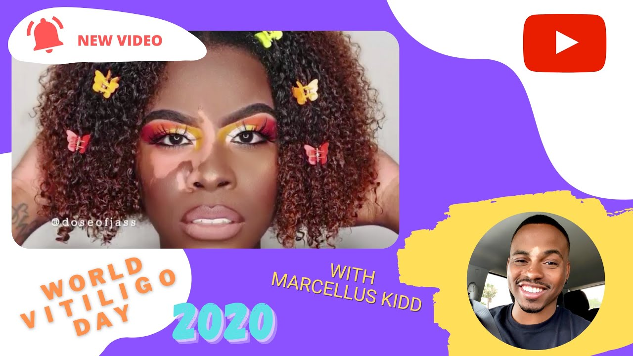 10 Amazing People With Vitiligo [World Vitiligo Day 2020 Special]