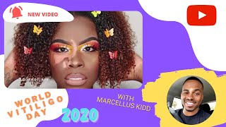 10 Amazing People With Vitiligo [World Vitiligo Day 2020 Special]