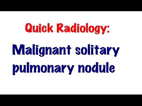 QUICK RADIOLOGY: Signs of solitary malignant pulmonary nodule