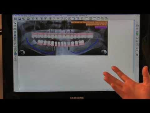 Dr Ryan Taylor Dental Implants Sarasota, Florida FAQ - 7