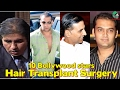 Bollywood stars who underwent for Hair Transplant Surgery