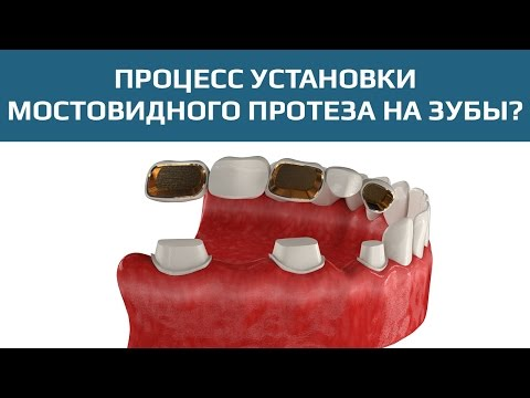 Протезирование зубов в Москве от 7500 руб. Консультации по