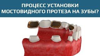 Мостовидные протезы: зубной мост для замещения нескольких зубов(Мостовидные зубные протезы применяются для замещения одного или нескольких зубов. В данном случае показан..., 2015-08-29T19:27:05.000Z)