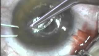 Intralase Tunnel   Intralase Perforation & Ring Insertion Problems 1