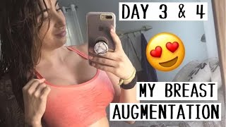 Day 3 & 4 of Recovery || My Breast Augmentation