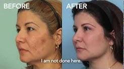 hqdefault - Faces Diabetes El Paso Tx