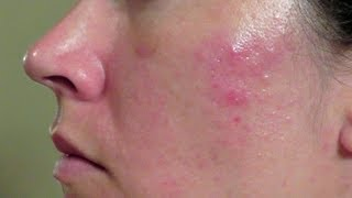 How I Got Rid Of Cystic Acne