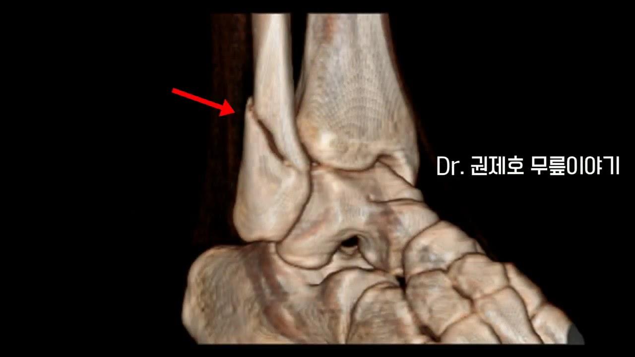 발목 골절 개방적정복술 내고정술 Ankle Fracture Open reduction and internal fixation