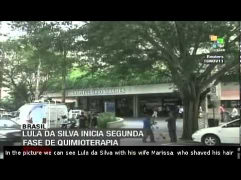 Lula da Silva saved head and hair for cancer treatment