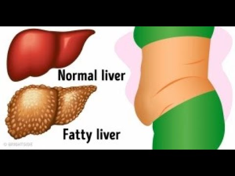 6Warning Signs That Show Your Liver IsFull ofToxins