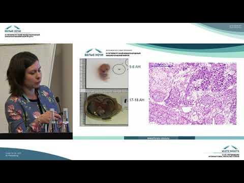 Периневральная инвазия при протоковом раке поджелудочной железы