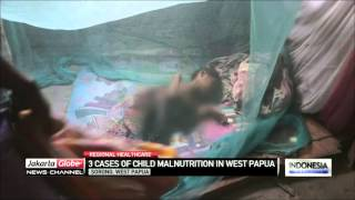 Download Video 3 Cases Of Child Malnutrition In Sorong, West Papua MP3 3GP MP4