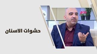 د. خالد عبيدات - حشوات الاسنان