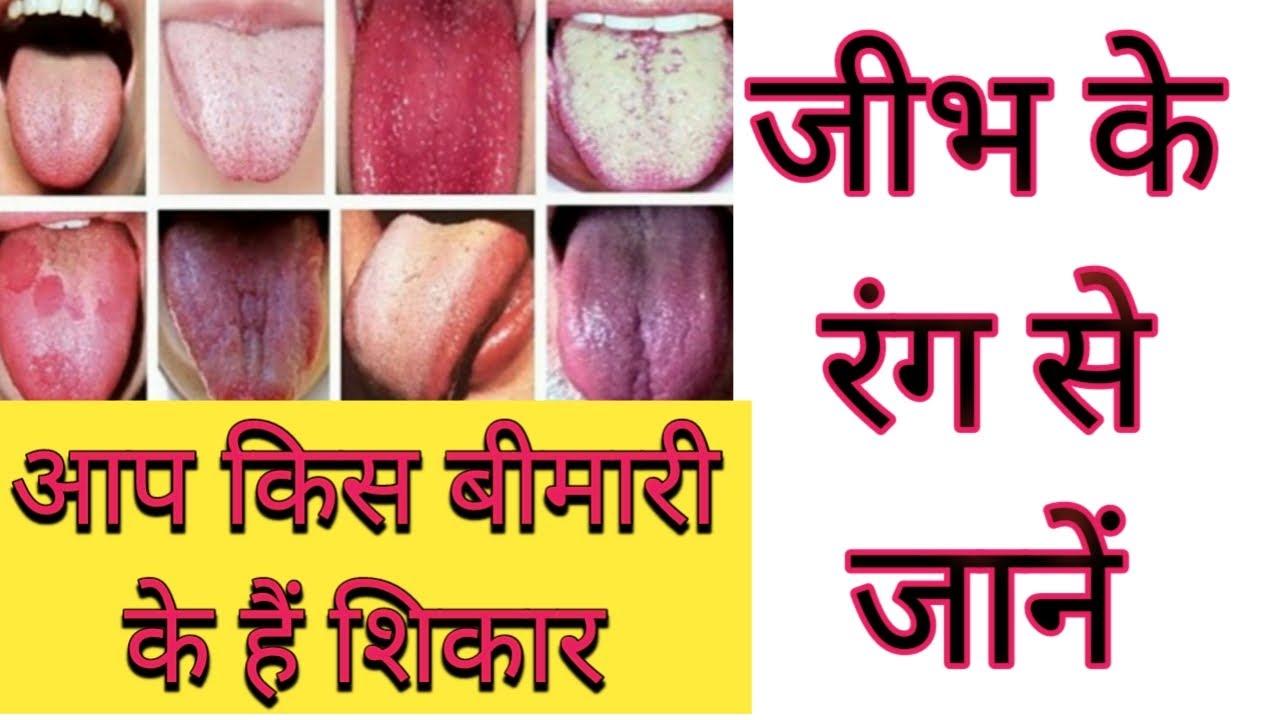 जीभ के रंग से जानें अपने शरीर का हाल ll What Your Tongue Says About Your Health.