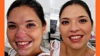 ★★★Vitiligo Heilen, Vitiligo Weißfleckenkrankheit, Vitiligo Bestrahlung, Weisse Flecken Auf Der Haut