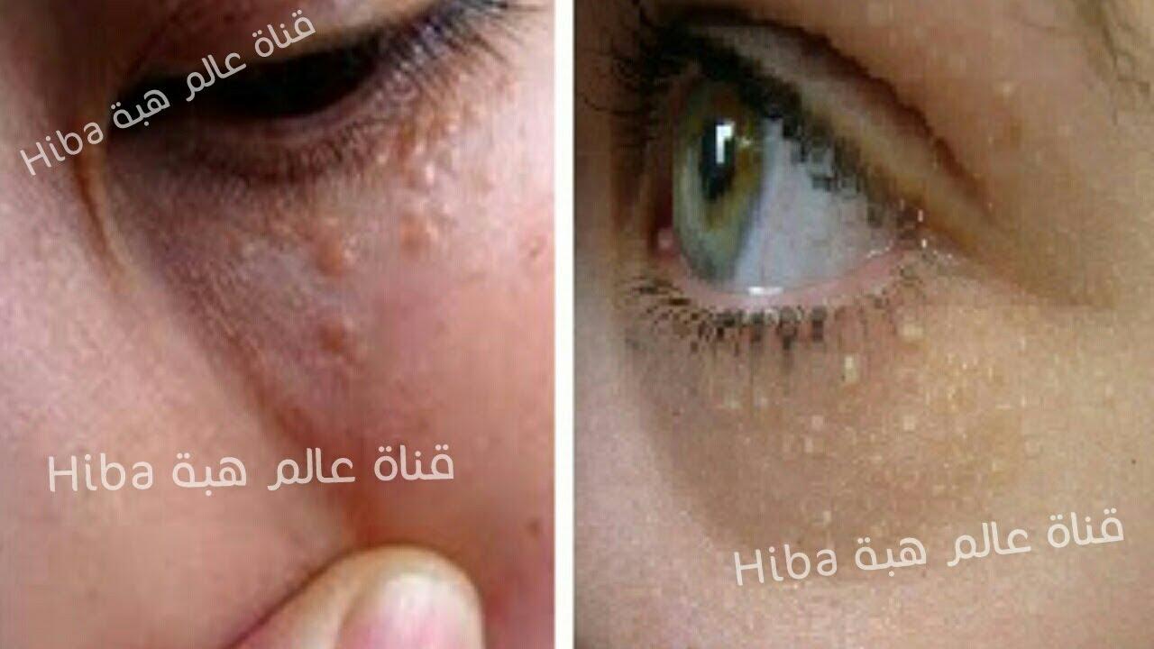 سبب ظهور الحبوب البيضاء في الوجه وتحت العين مع طرق للعلاج تخلصى من الحبوب البيضاء نهائيا Youtube