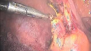 Хронический аппендицит. Лапароскопическая операция.