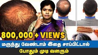Hair Regrowth Tips Tamil | Dr Yogavidhya
