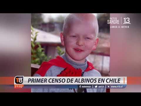 Primer censo de albinos en Chile