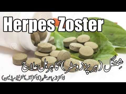 Herpes Zoster shingles herbal cure ( ہربل علاج) Dr NA Mazhar