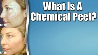 """Chemical Peels: """"What Is A Chemical Peel?"""""""