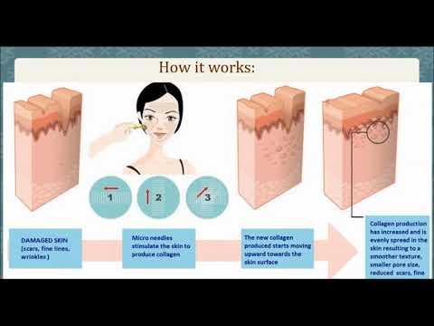 WEBINAR: Reverse Skin Damage with SilkPeel® Treatments