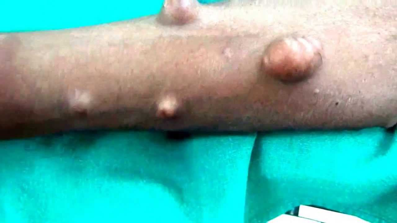 Neurofibromatosis causing disfigurement of the body