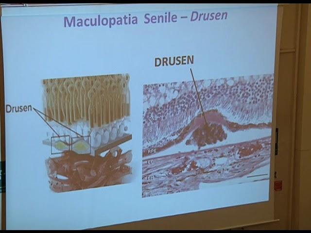 Dott Bruno Oldani - La maculopatia, come affrontarla e gestirla da medico a paziente