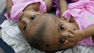 Bangladeshi conjoined twins expect surgery