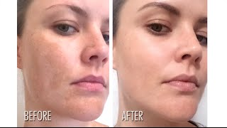Pigmentation Solution&New Skincare(, 2016-05-06T11:44:20.000Z)