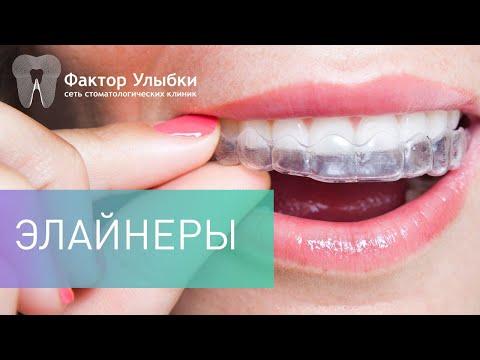 Вопрос: Как выпрямить зубы без брекетов?