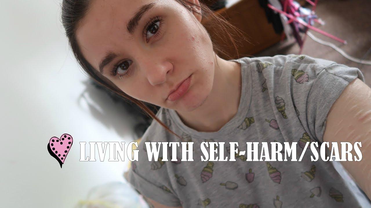 Self Harm Scars