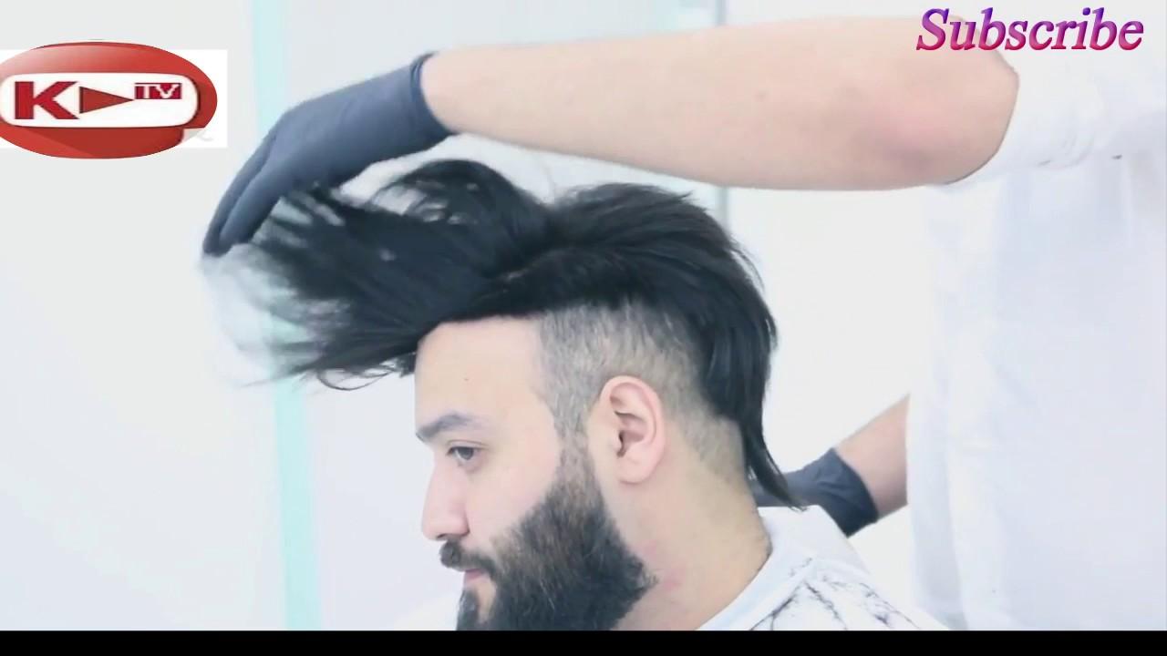 وداعا للصلع تركيب شعر طبيعي للرجال لاخفاء الصلعة الكوافير حسن المهندس 2017 Youtube