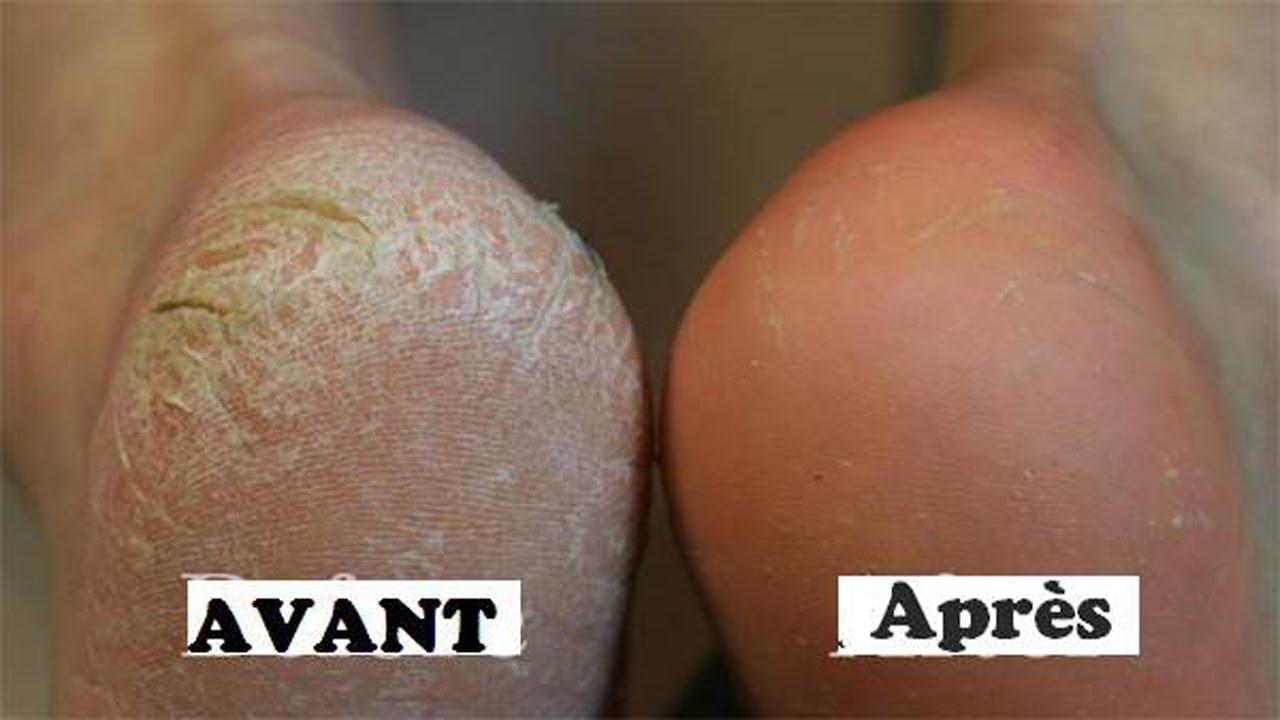 traitement gercures pieds