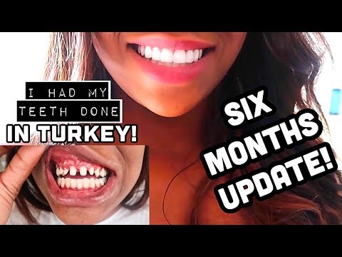 SIX MONTHS UPDATE - REGRETS?! TOTAL COSTS & FAQS | MY EXPERIENCE WITH PREMIUM DENTAL TURKEY