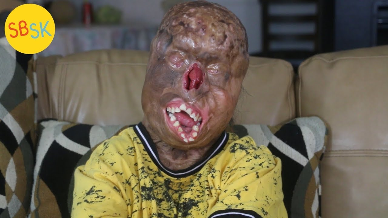Download Surviving Severe Burns (Doctors Say He's a Miracle)
