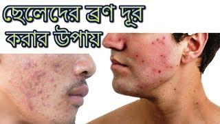 ছেলেদের রোদে পোড়া দাগ ও মুখের ব্রণ দূর করার উপায় | Rupchorcha | Beauty Tips Bangla