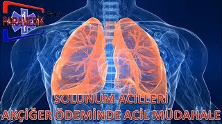 SOLUNUM ACİLLERİ - Akut Akciğer Ödemi'ne Nasıl Müdehale Edilir ?