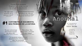 AnorMal, un cortometraje documental de Luis Galán