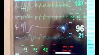 Chemical cardioversion of SVT