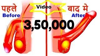 7 दिनों में घोड़े जैसी मर्दाना ताकत पाने का नुस्खा - Home Remedies Gharelu Nuskhe By desi doctor