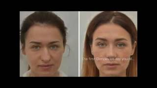BEFORE AND AFTER RHINOPLASTY US$1,990 – www.TopPlasticSurgeonsMexico.com