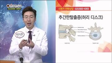 종아리 근육이 뭉치는 원인, 근육통VS디스크, 찜질의 효과