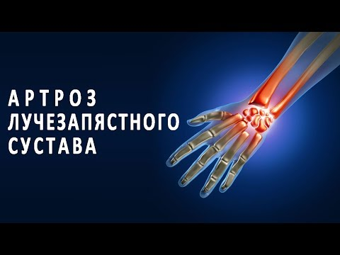 Почему болят лучезапястные суставы