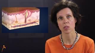 Acne Treatment in Philadelphia - By Dr. Ringpfeil - Board certified dermatologist