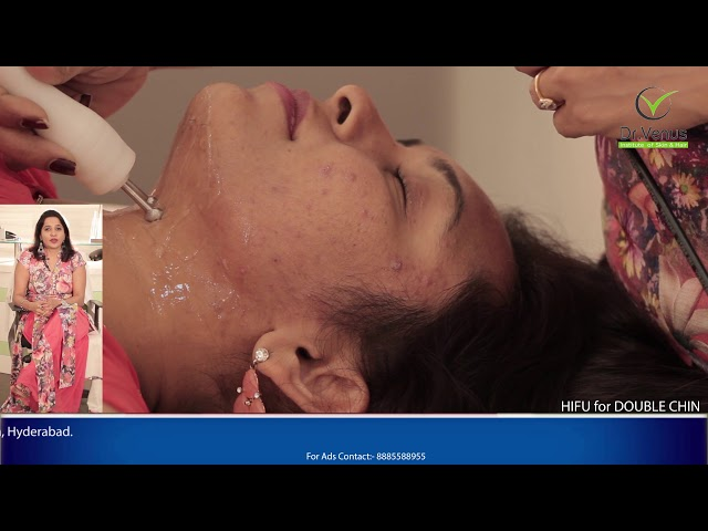 Double Chin Removal Treatment in Hyderabad Without Surgery